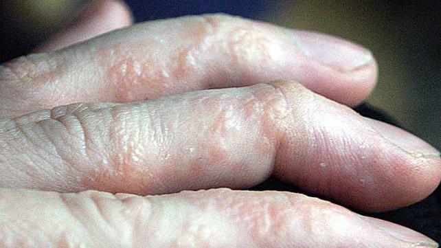 Penyakit Ekzema Boleh Dirawat Atau Dicegah Dengan Kaedah Betul.